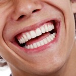 closeup-of-healthy-male-smile-300x300