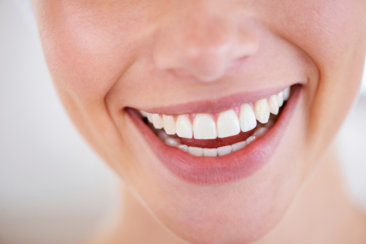 A smiling woman's teeth when veneered