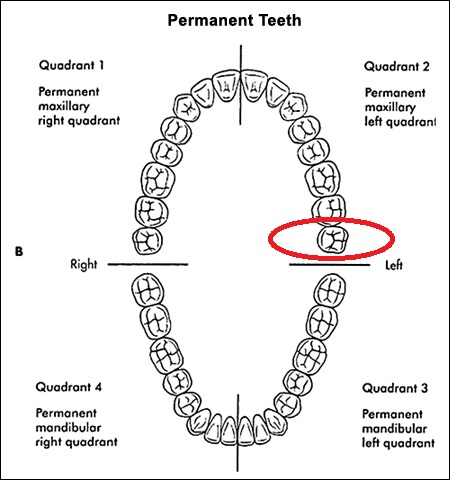 dental quadrants1